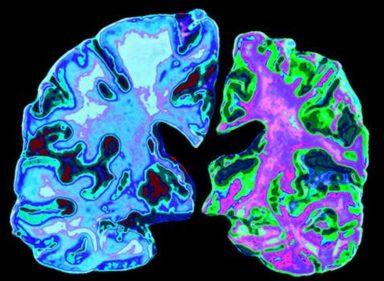 Alzheimer's_disease___New_Scientist